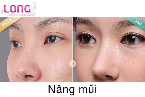 nang-mui-co-lam-bien-dang-mat-khong-1