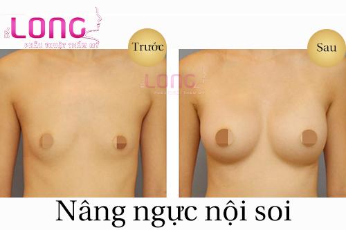 nen-nang-nguc-noi-soi-vi-tri-nao-dep-va-khong-co-seo-1