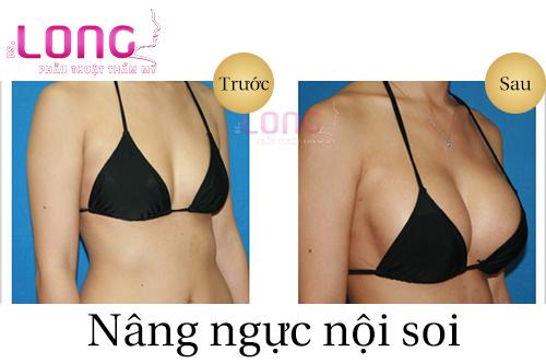 nang-nguc-noi-soi-co-an-toan-khong