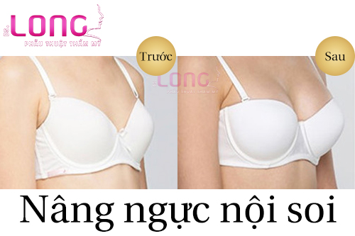 nang-nguc-noi-soi-y-line-la-gi-1