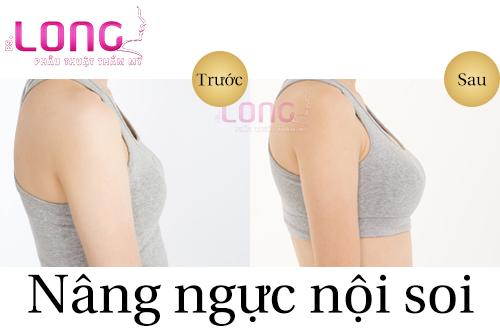 nang-nguc-noi-soi-co-khac-phuc-chay-xe-duoc-khong-1