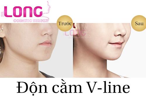neu-phau-thuat-don-cam-vline-co-dau-khong-1