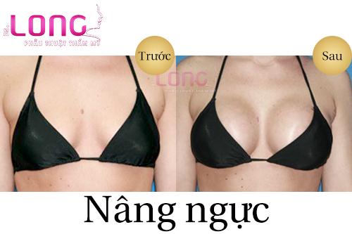 nang-nguc-bang-nguyen-lieu-tu-nhien-tai-sao-khong-1