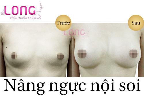 nang-nguc-noi-soi-co-nang-nguc-duong-ron-khong-1